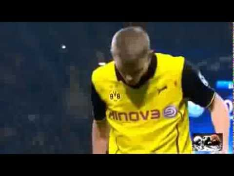 Sven Bender With Broken Nose Napoli vs dortmund