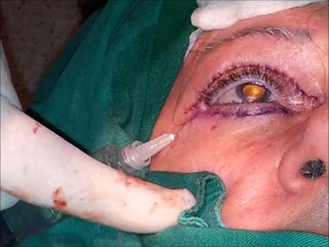 Blefaroplastia Superior e Inferior
