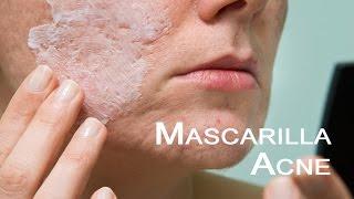Mascarilla para eliminar granos y acné