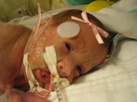 24 week premature baby - YouTube