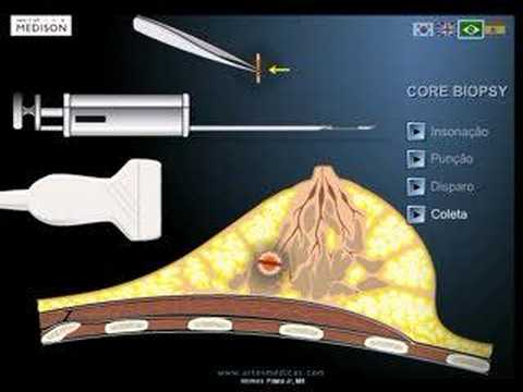 FNAB - core biopsy of the breast - biopsia de mama guiada por ultra-som