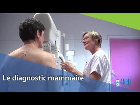 Le diagnostic mammaire - CHRU de BREST