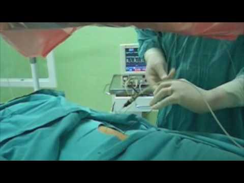 Tratamiento de cálculo gigante del riñon sin cirugía