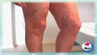 Remedios caseros contra las várices y  en las piernas
