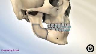 Mandibular Set-Back (Underbite,Class III) (Overbite Class II)