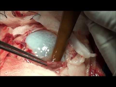 Hydatid Cyst of Human Brain