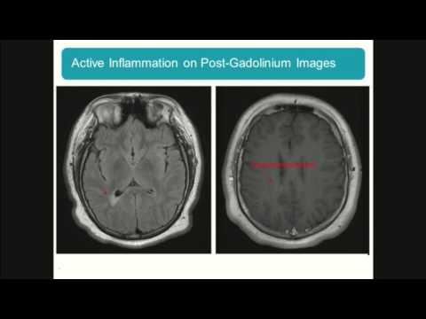 Pediatric Nursing Update: Pediatric Multiple Sclerosis