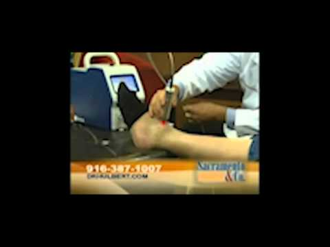 Dr. Hulbert Explains Deep Tissue Laser Therapy on Good Day Sacramento