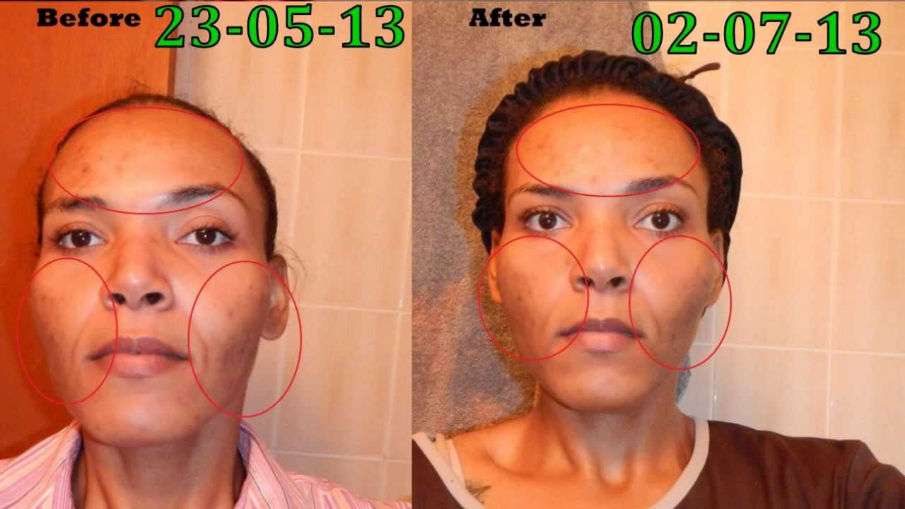 My Bad Acne Scars Honey Skin Care Experiment Part 2 Daily