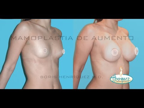 Mamoplastia Aumento Senos Protesis Basilio Henriquez Boris Cirujanos Plsticos Barranquilla Colombia