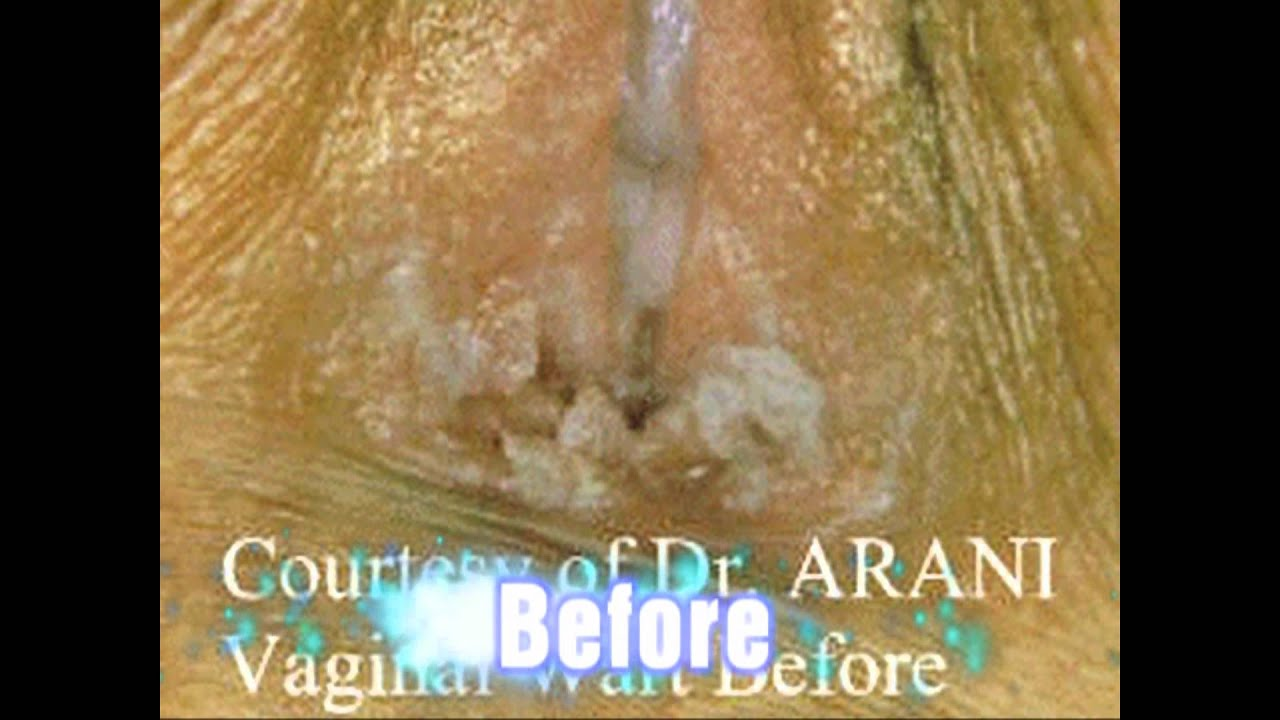anal rectal warts Images of