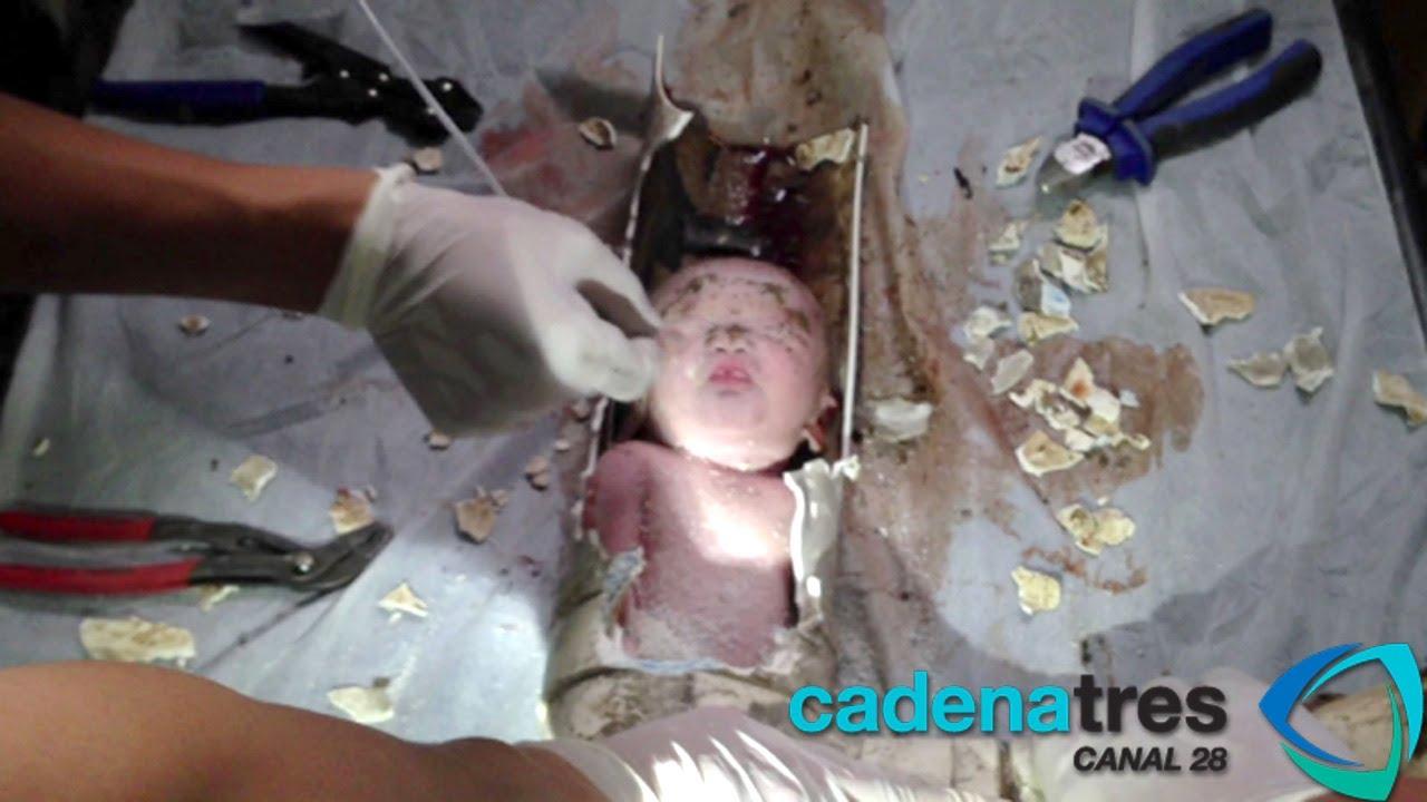 Incre 237 Ble Beb 233 Reci 233 N Nacido Se Atasca En Tuber 237 A Y