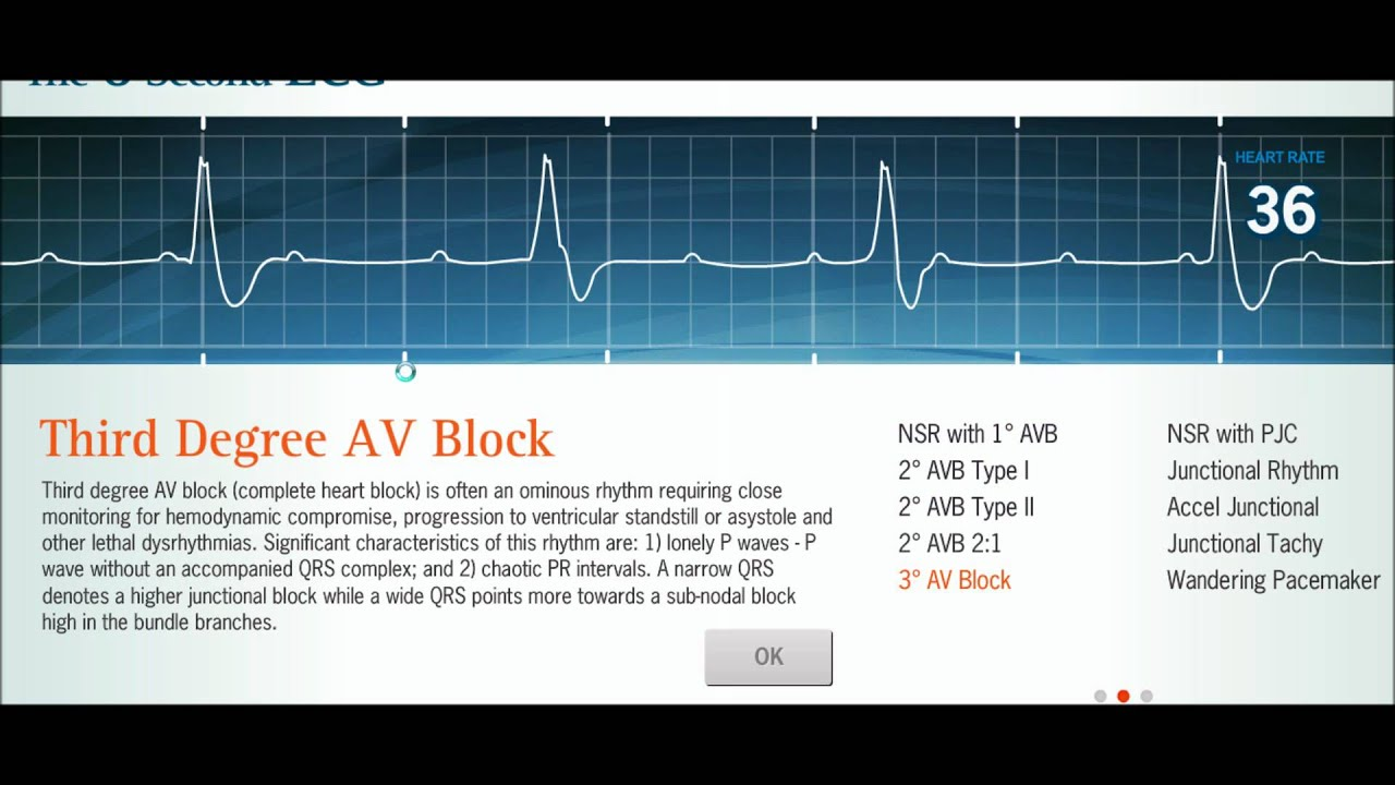 Easy Ekg  Interpreting Rhythms