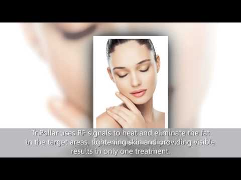 Tripollar Skin Treatment New York | Stretch Mark Removal