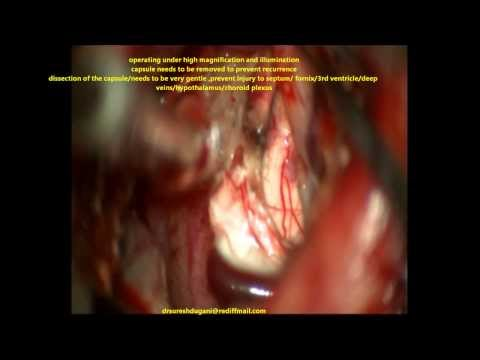COLLOID CYST 3RD VENTRICLE (LARGE) -microsurgical removal-dr suresh dugani/HUBLI/KARNATAK/INDIA
