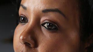 How I Survived Female Genital Mutilation