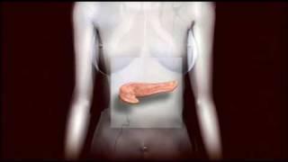 Diabetes Overview