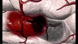السكتة الدماغية النزفية : اسبابها وأعراضها - Nabed