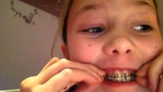 How To Make Fake Braces For A Nerd Costume
