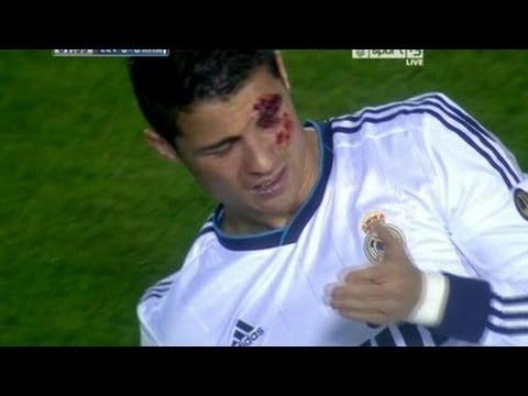 Cristiano Ronaldo Injured!!!!!!!!