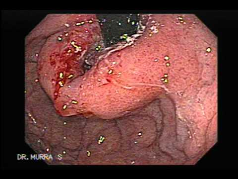 que es la gastritis y como se cura