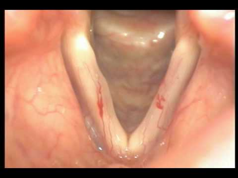 Vascular Lesions of the Vocal Fold (Dr. Rey Caro)