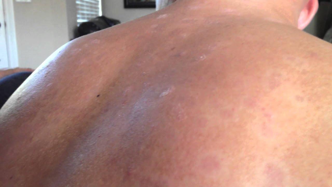 blackhead on back - photo #9