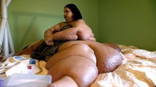 Fattest Woman In The World Losses 600 Lbs - Mayra Rosales