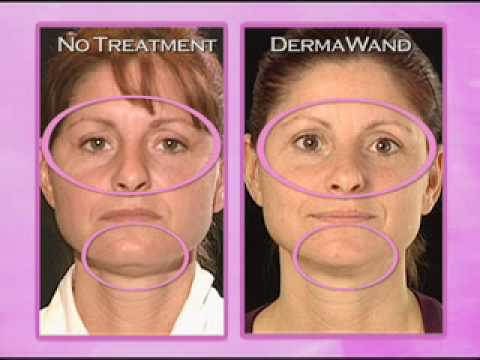 Derma Wand Before and After