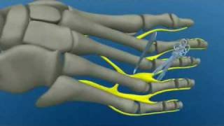 Surgery Morton's Neuroma Pain In Foot