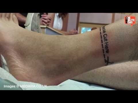 Boy chooses to have legs amputated phim video clip for Cut off tattoo