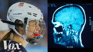 Why women's ice hockey has a higher concussion rate than football