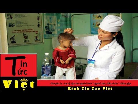 Tin Tức Việt | Chuyện lạ - Lạ kỳ cậu bé người Hrê