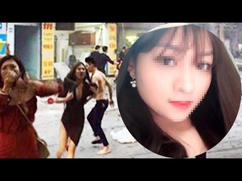 Nữ tiếp viên quán karaoke bị cháy ở Hà Nội thoát chết nhờ chiếc áo ngực