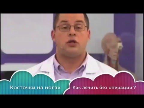 Как лечить косточки без операции?