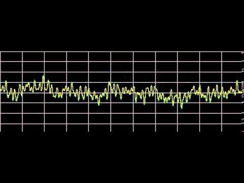 Bipolar Disorder - Rife Frequencies