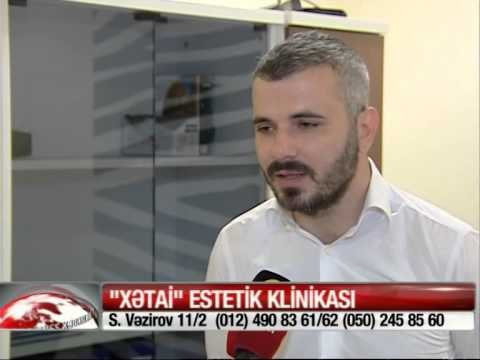 Xetai Estetik Klinika Bayramlı Samir Sac Əkilməsi Müsahibə  20.05.2015