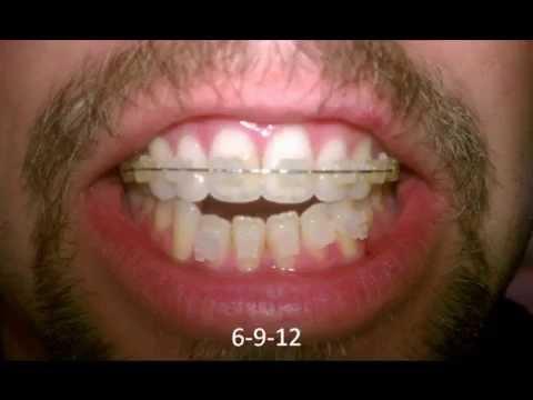 Adult anterior open bite