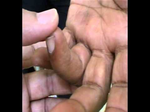NEUROPATHY, TRIGGERED FINGER, INSOMNIA treatment by Acupuncture at SARC-Goa Research Centre