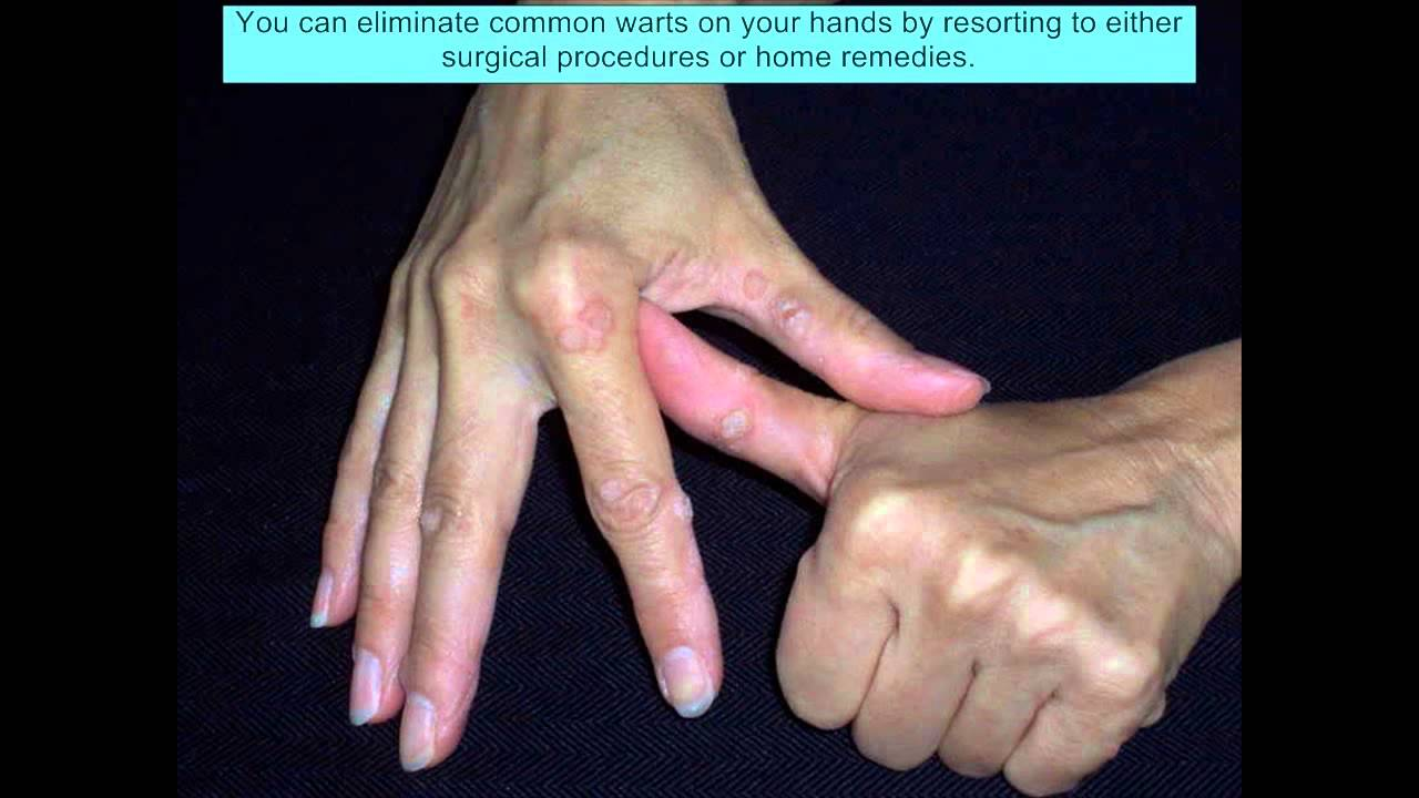 Warts On Fingers - Warts On Fingers Treatment