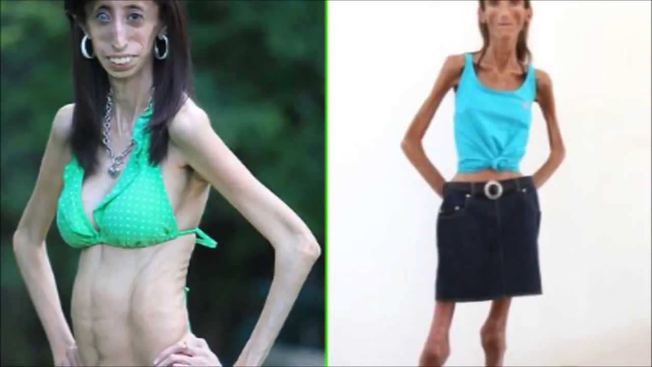 skinniest-person-in-the-world