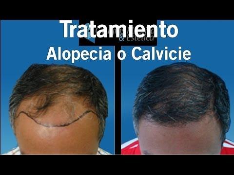 Cirugia de correccion de Calvicie o de Implantes Capilares   Alopecia Tratamientos Capilares