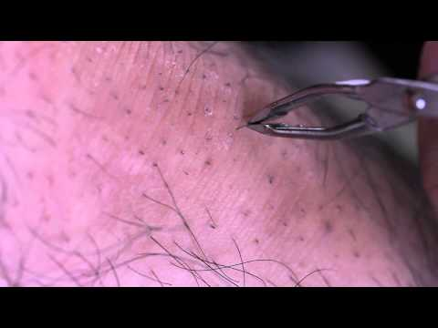 Hình ảnh trong video VERY OLD INGROWN HAIR REMOVAL.mp4