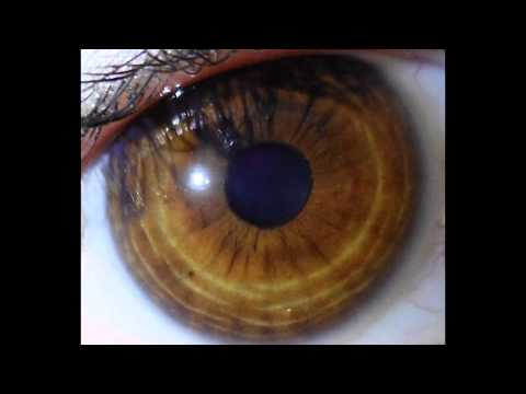 ✿ Iridology ✿ - Eye Review 10 ★★★★★