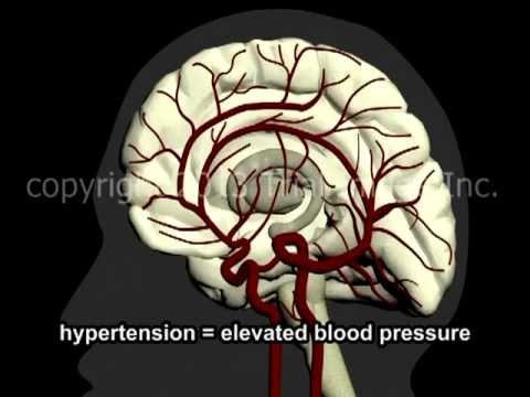 What Is A Stroke? - Narration and Animation by Cal Shipley, M.D.