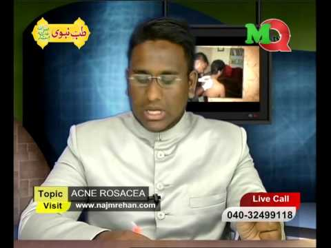 Mqtv Channel  Tibb E Nabawi (saw) Topic  Acne Rosacea