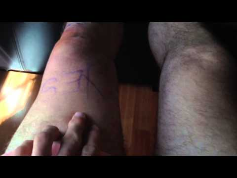 Meniscus tear surgery and recovery (part 1)