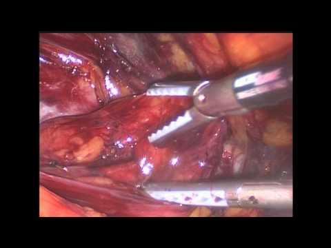 Instrumental laparoscopia hernia inguinal (TEPP)