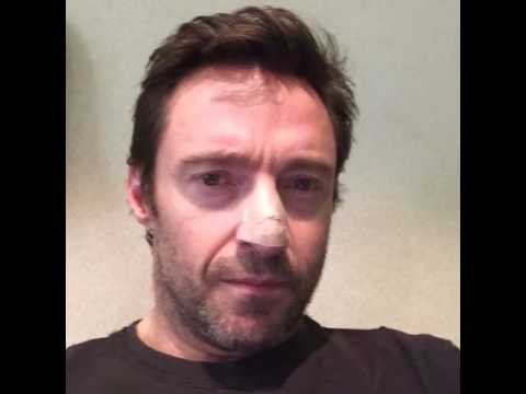 Hugh Jackman Has Skin Cancer Removed, Reminds Us to Wear Sunscreen