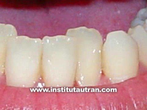 Estética dental: dientes detrás de otros (problema/solución)